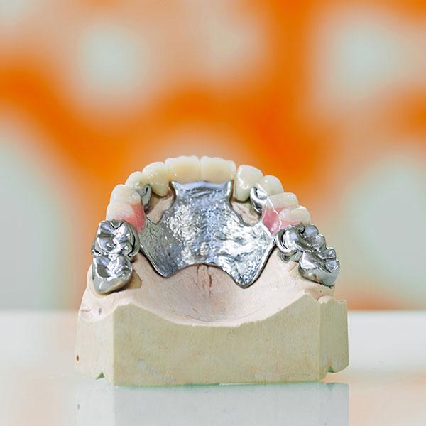 Klammerprothese mit Standart Krone eingesetzt