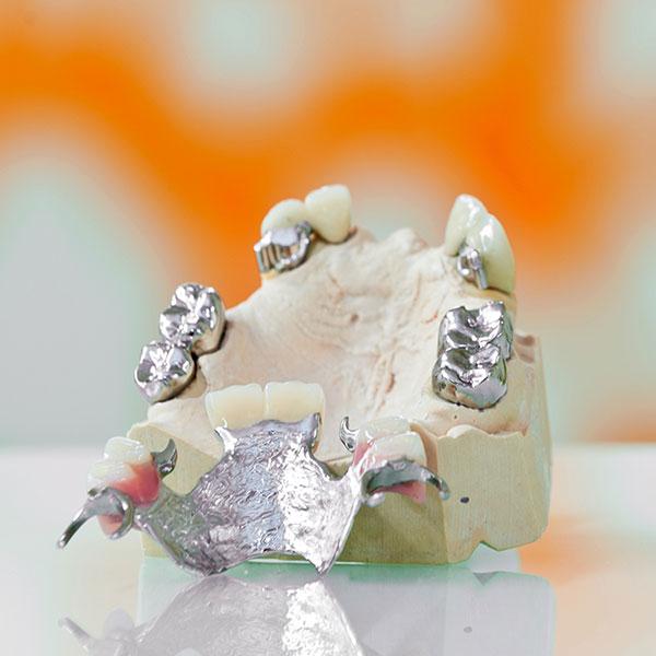 Klammerprothese mit Standart Krone