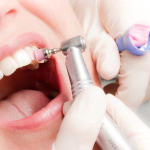 Professionelle Zahnreinigung Kariestest