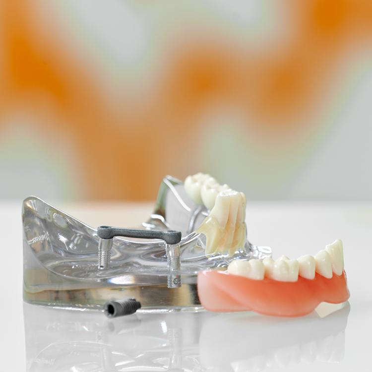 Implantatgetragene Prothese