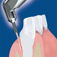 bohren ohne bohrer Laserzahnheilkunde Parodontologie