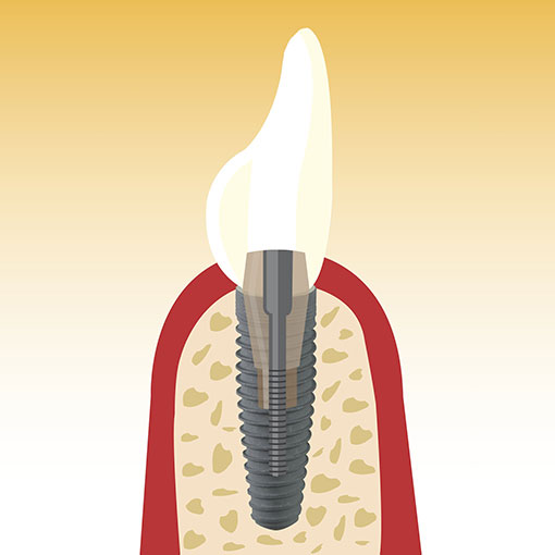 illustration implantat